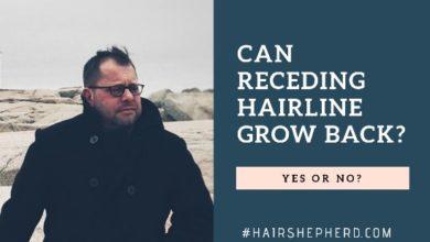Can A Receding Hairline Grow Back Again?